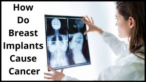 How Do Breast Implants Cause Cancer