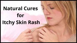 Natural Cures for Itchy Skin Rash