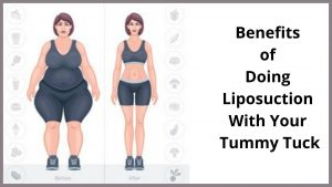 Benefits of Doing Liposuction with your Tummy Tuck