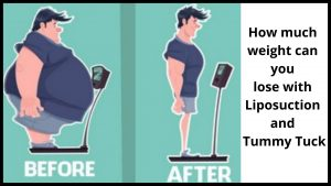 How much weight can you lose with liposuction and tummy tuck