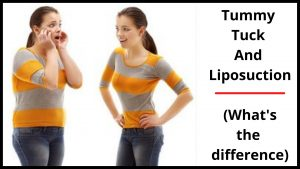 Tummy Tuck And Liposuction (What's the difference)