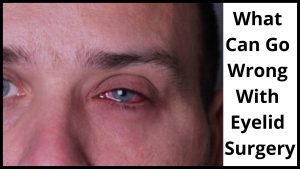 What Can Go Wrong With Eyelid Surgery